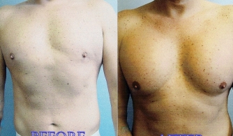 before-after-pectoral-implants-03