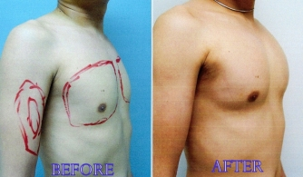 before-after-pectoral-implants-04