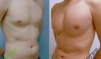 before-after-pectoral-implants-05