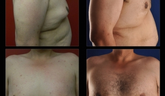 before-after-pectoral-implants-06
