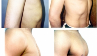 before-after-pectoral-implants-07