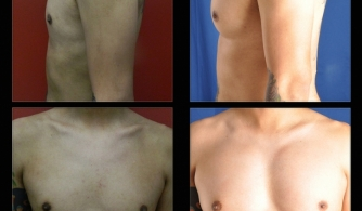 before-after-pectoral-implants-08