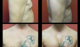 before-after-pectoral-implants-09