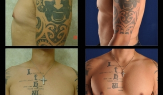before-after-pectoral-implants-11