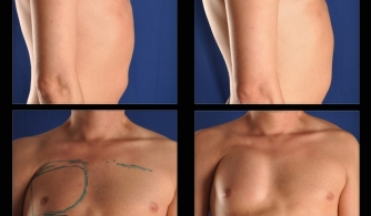 before-after-pectoral-implants-12