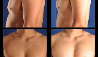 before-after-pectoral-implants-13