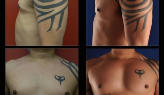 before-after-pectoral-implants-14
