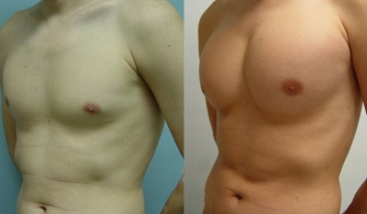 before-after-pectoral-implants-15
