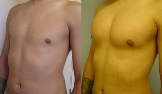 before-after-pectoral-implants-16