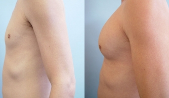 before-after-pectoral-implants-17