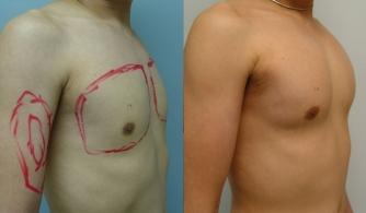 before-after-pectoral-implants-19