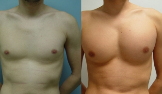 before-after-pectoral-implants-20