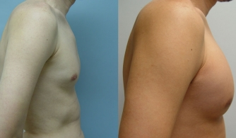before-after-pectoral-implants-21