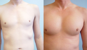 before-after-pectoral-implants-22