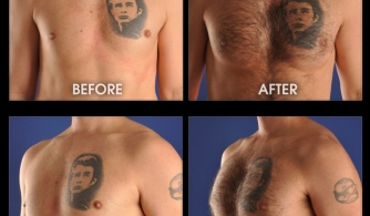 before-after-pectoral-implants-24