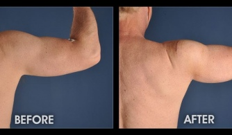 Before & After Tricep Implant procedure