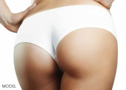 buttock-aug-implants1-260x185