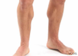 calf-implants-260x185