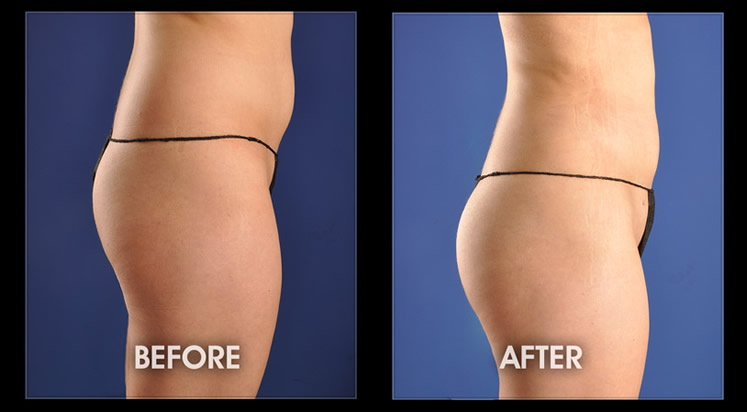 Buttock Augmentation – BBL, Cosmetic Surgery, Lafayette